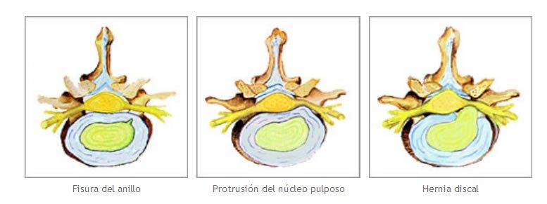 hernia discal versus protusion