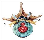 Protusión del anillo fibroso. Fuente: http://www.medical-exercise.com/